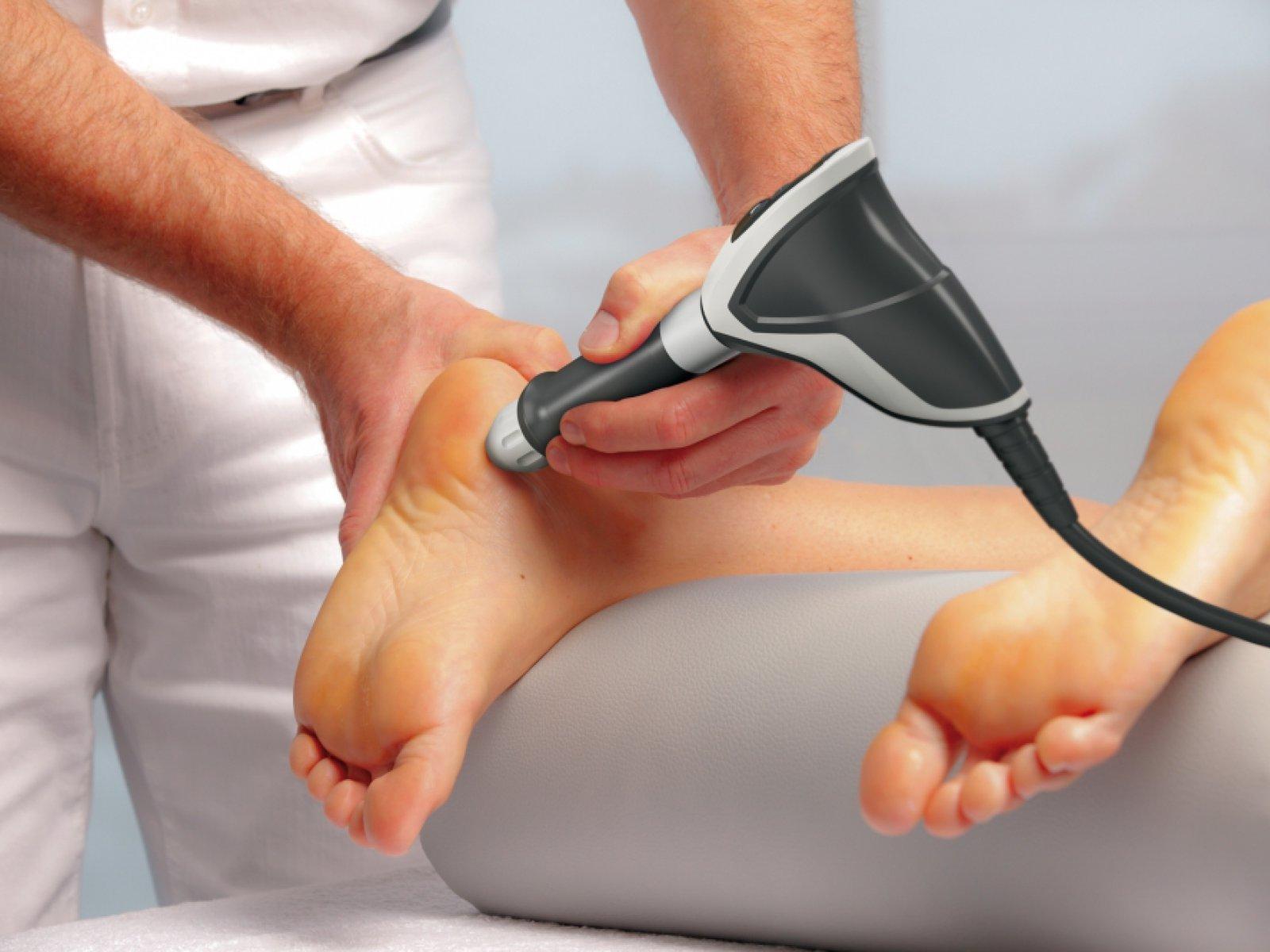 Ударно-волновая терапия пяточной шпоры: какова эффективность?