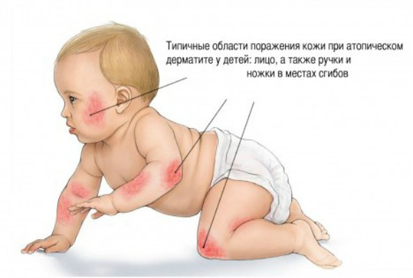 Атопический дерматит грудных детей симптомы