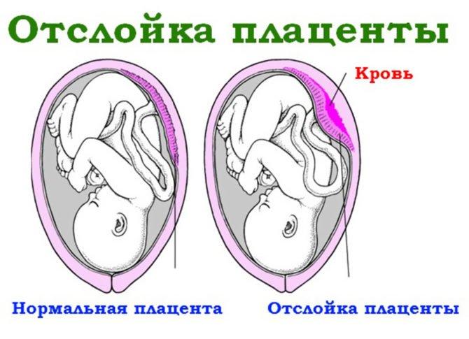 Отслойка плаценты во время беременности