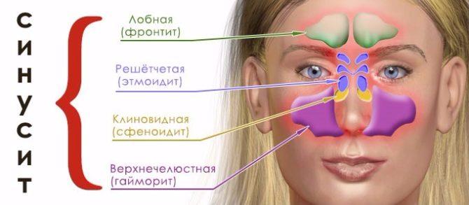 гайморит головокружение тошнота