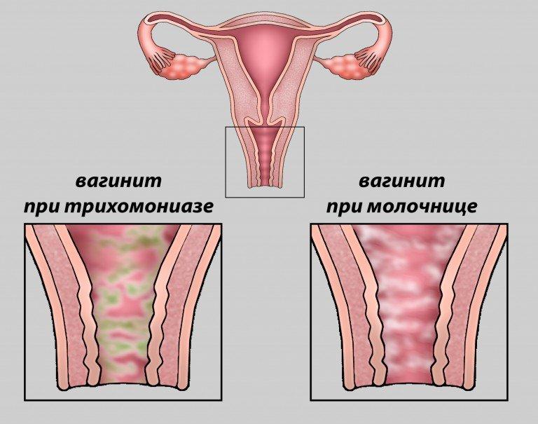 Острый вагинит (кольпит): причины, симптомы, диагностика, лечение и профилактика, последствия