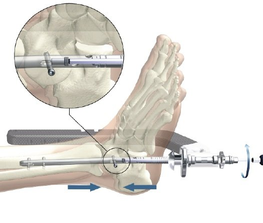 артродез сустава