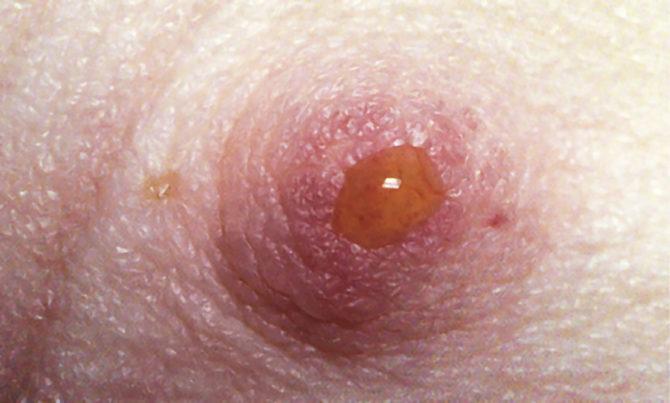 лечение препаратами внутрипротоковой папилломы