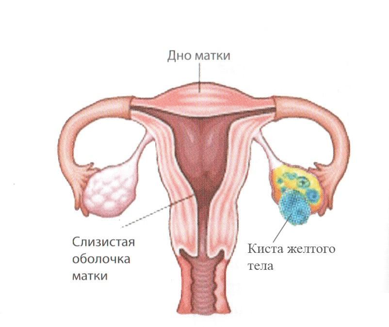 Киста желтого тела яичника с кровоизлиянием лечение