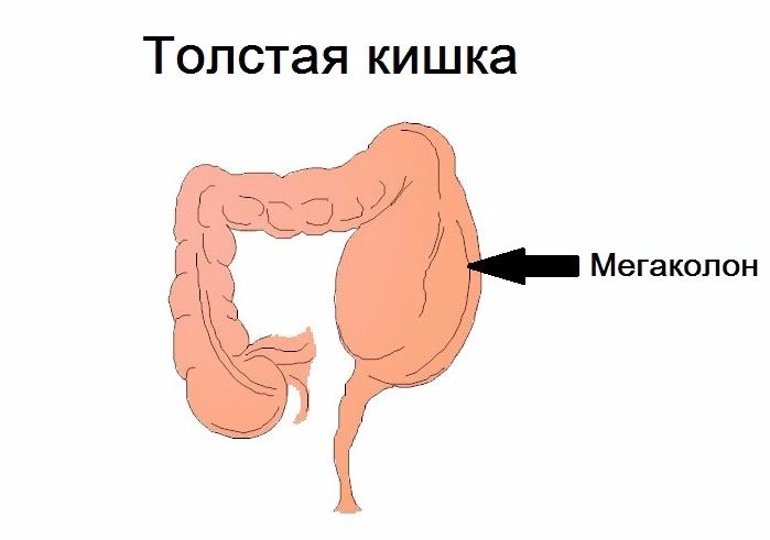 Мегаколон