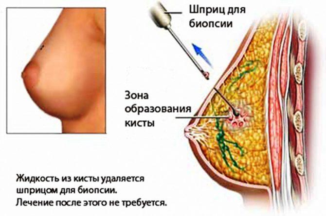 Пункция кистозной жидкости