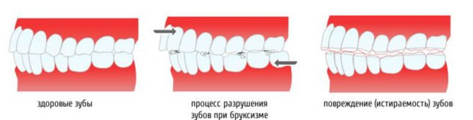 Стирание зубов