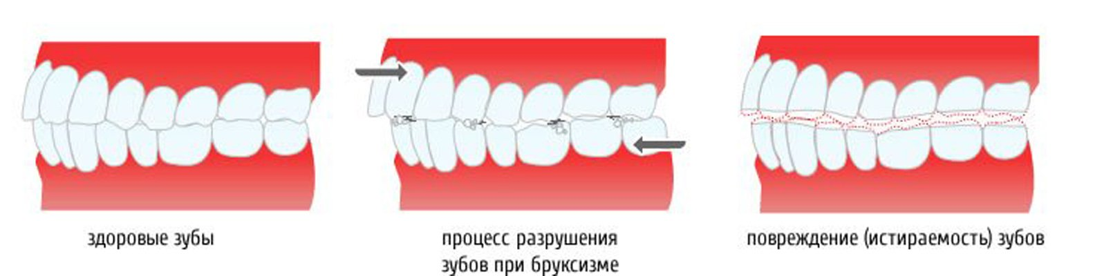 Сильно сжатые зубы причины