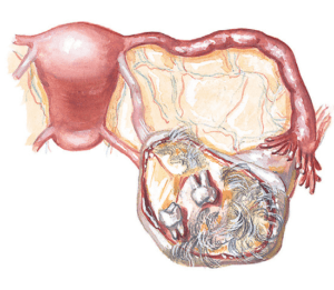 схема тератомы яичника