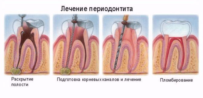 лечение переодонтита