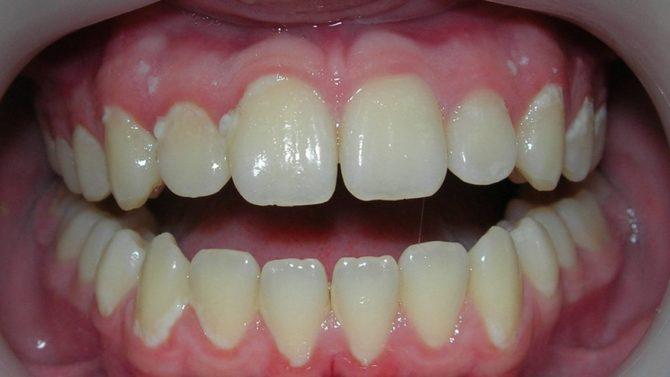 Белые пятна в пришеечной области зуба