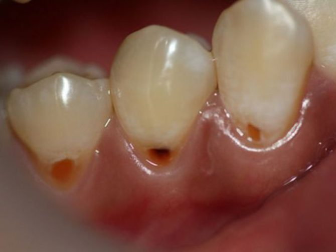 Прикорневое кариозное разрушение зубов