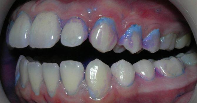 Зубы, окрашенные индикатором кариеса