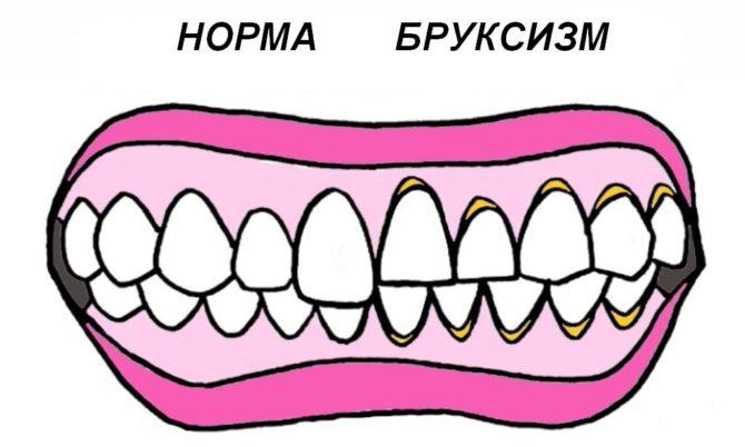 зубы в норме и при бруксизме