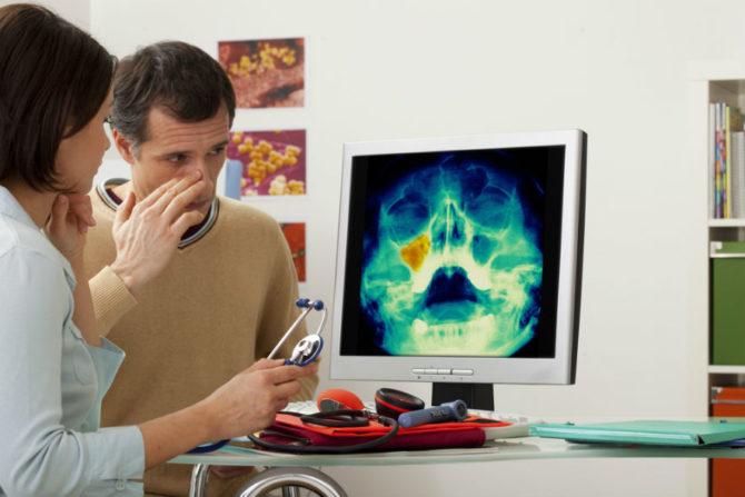 Диагностика хронического гайморита