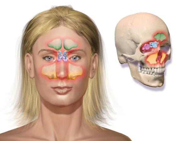 Схема развития воспалительного процесса в придаточных пазухах носа