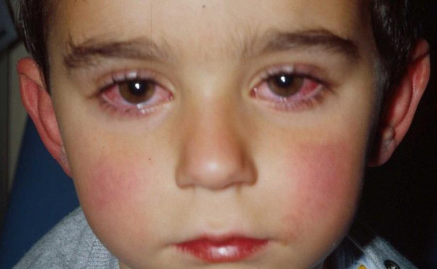 Конъюнктивит у ребенка чем опасен и как лечить