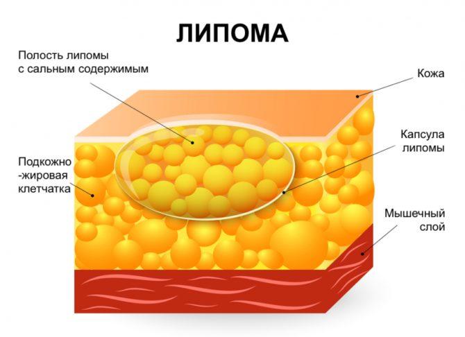 Схема жировой опухоли