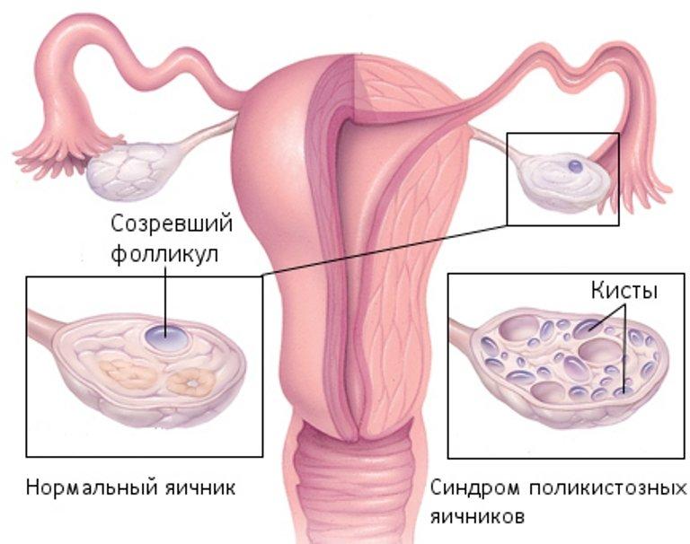 Боровая матка отзывы поликистоз яичников