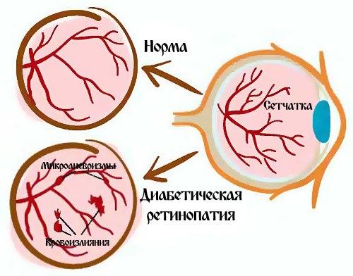 схема диабетической ретинопатии