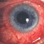 Диффузный склерит