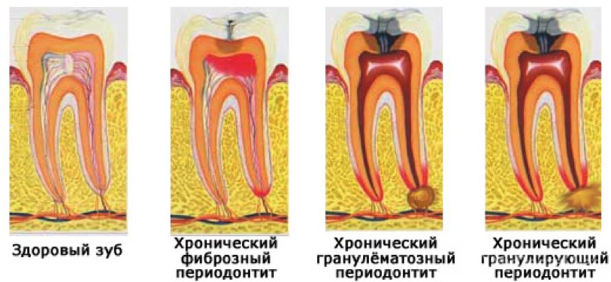 Вид зуба при периодонтите