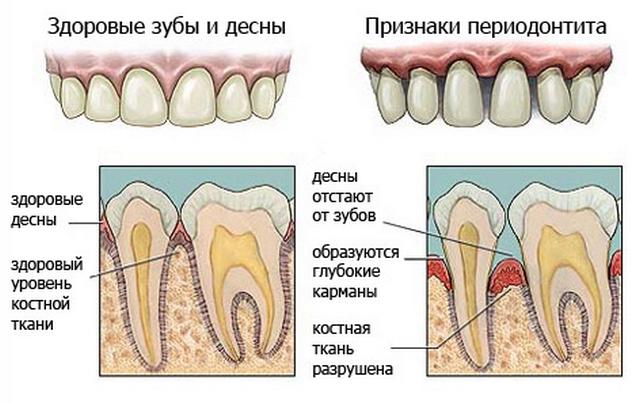 Симптомы периодонтита
