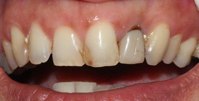 Пришеечный кариес молочных зубов