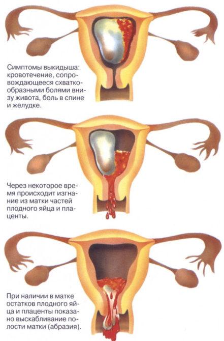 Аборт