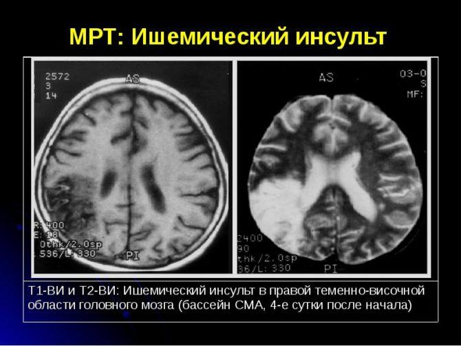 МРТ при ишемическом инсульте