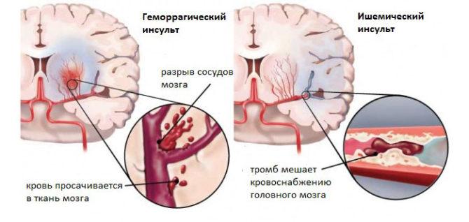 Основные виды инсульта у женщин