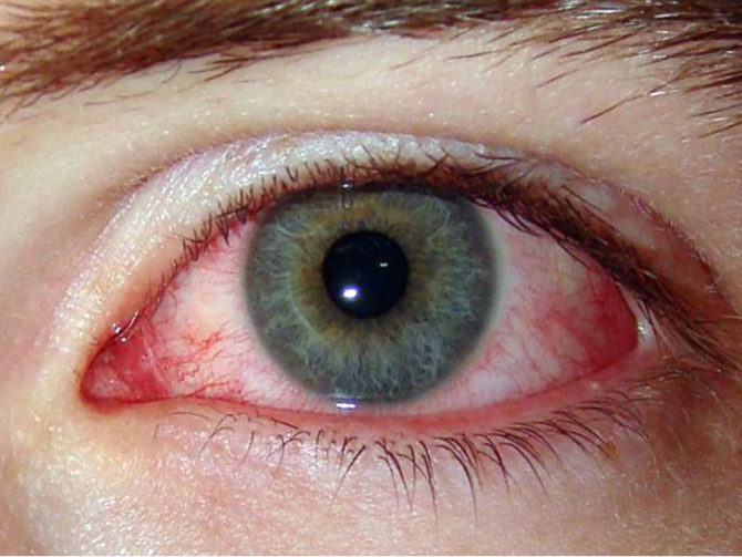 Воспалённый глаз при аллергическом конъюнктивите