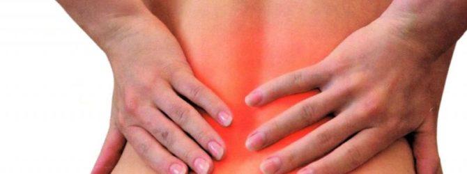 Боль в спине: люмбоишиалгия
