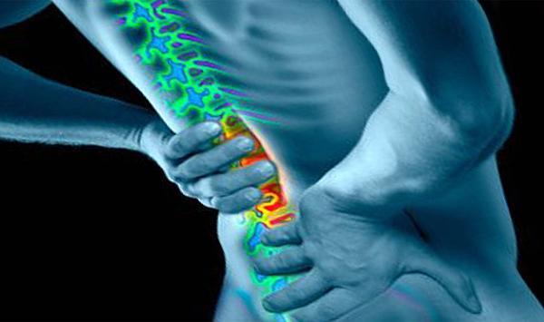Болевой синдром при люмбоишиалгии