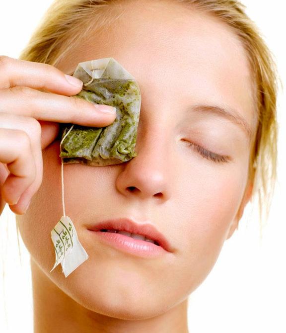 Девушка, приложившая к глазу чайный пакетик
