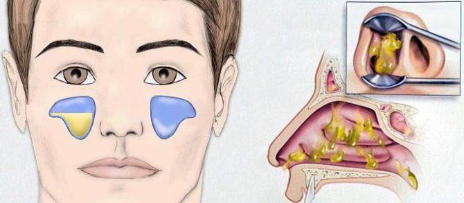Экссудативный гайморит