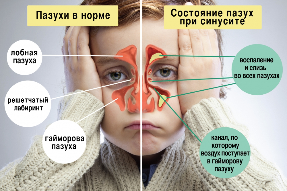Симптомы и лечение гайморита в домашних условиях народными средствами