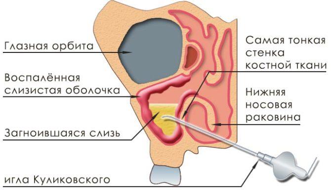 Техника проведения пункции