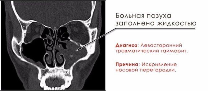 Рентгенограмма околоносовых пазух