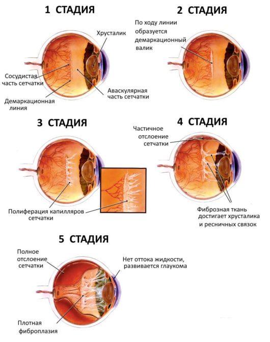 Схема развития ретинопатии