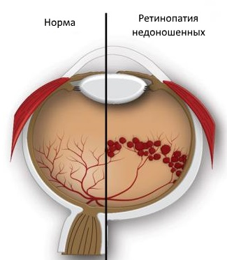 Схема строения глаза в норме и при ретинопатии