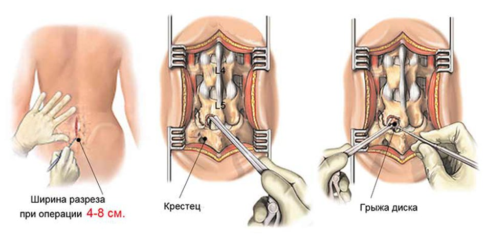 Удаление грыжи позвоночника после операции