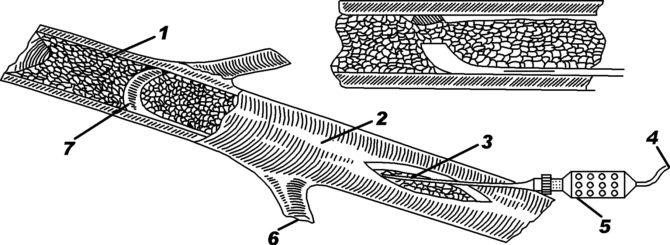 Схема процесса ультразвуковой эндартерэктомии