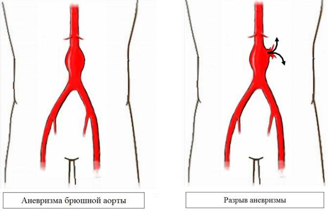 Аневризма аорты брюшной полости что это такое симптомы диагностика лечение без операции и цена