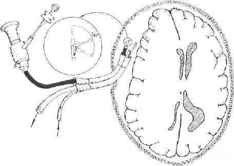 Дренирование гематомы через трепанационное отверстие