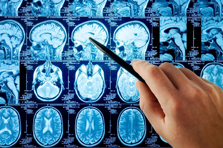 Кровоизлияние в мозг: как пережить геморрагический инсульт
