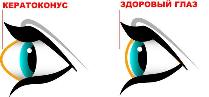 Кератоконус и здоровый глаз