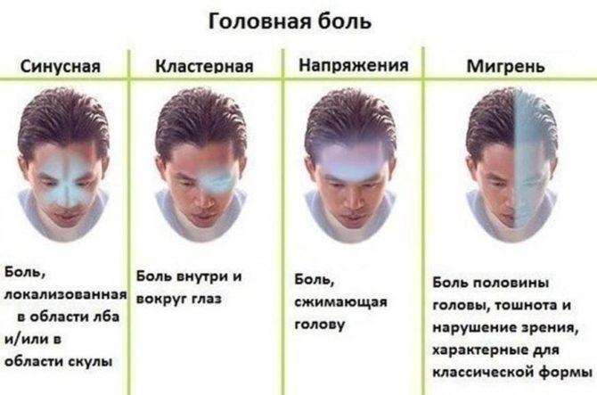 Отличие мигрени от иных видов головной боли