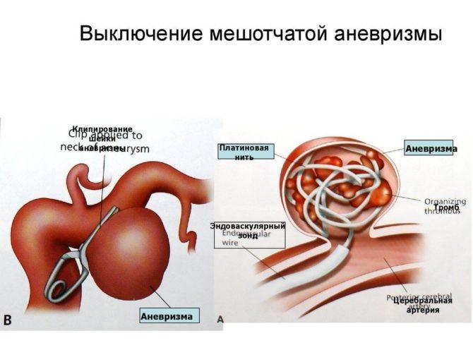 Операция по устранению аневризмы