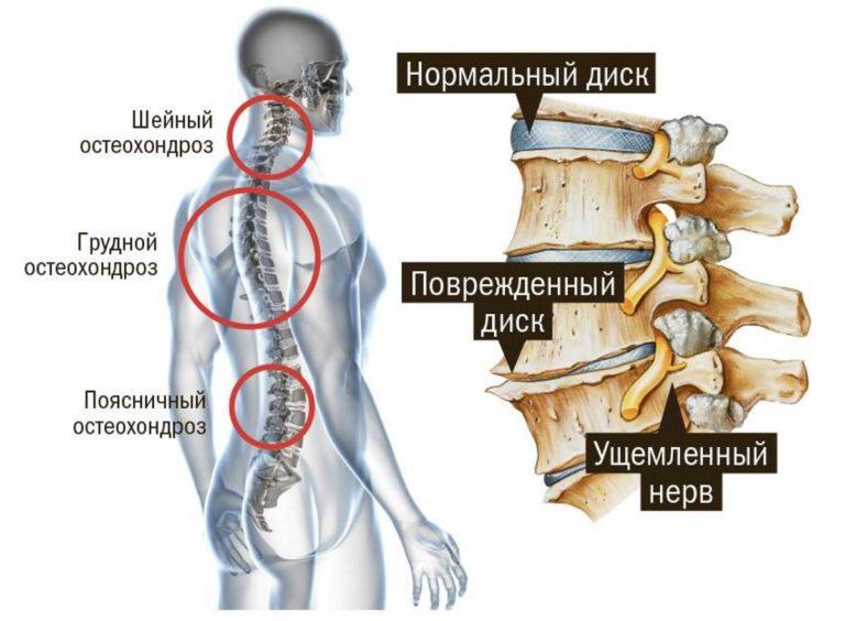 Как убрать жжение в голове при шейном остеохондрозе лечение: Шейно ...